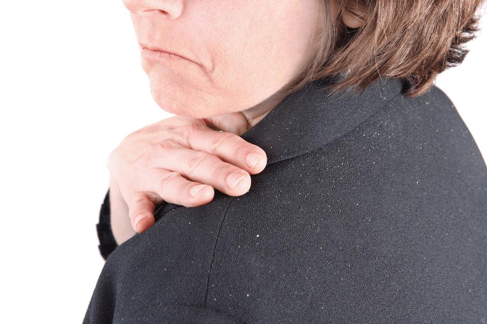 التحلص من قشرة الشعر طرق علاج قشرة الرأس
